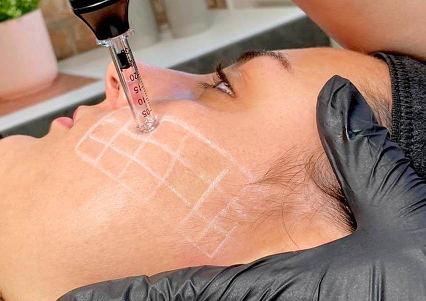 skin therapy