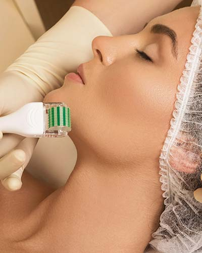 jacalyn james skin needling