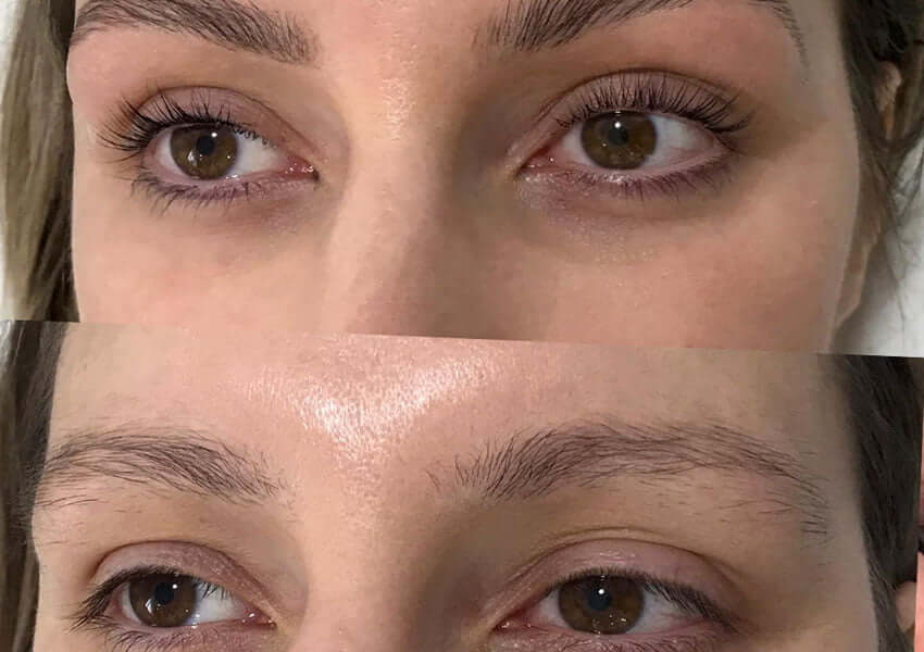 Lash Lift & Tint Before & After